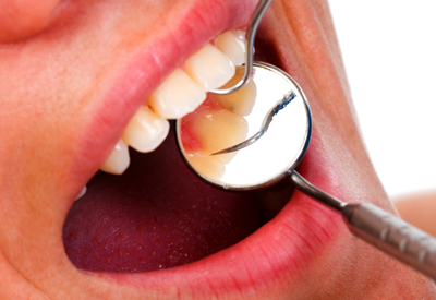 Oral Cancer Screening in Glen Ellyn, IL